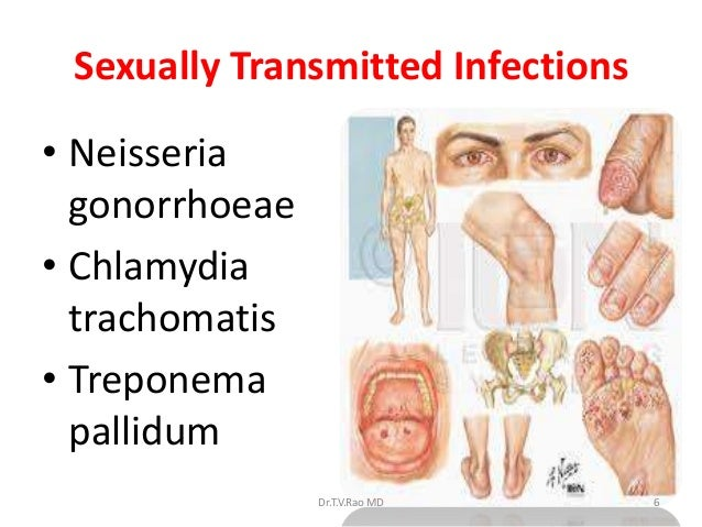 List five sexually transmitted infections images