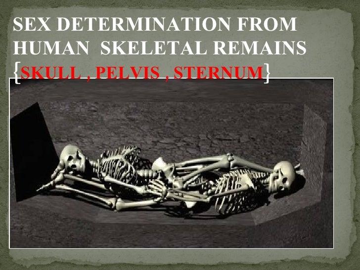 SEX DETERMINATION FROM HUMAN  SKELETAL REMAINS { SKULL , PELVIS , STERNUM }