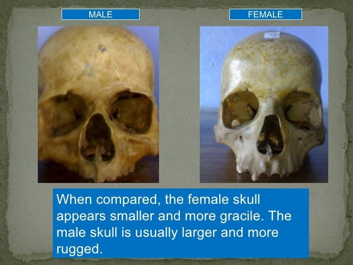 Human skull to identify sex