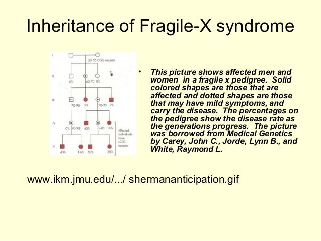 Fragile x syndrome sex linked