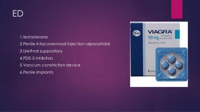 ED 1.testosterone 2.Penile intacavernosal injection-alprosatidal 3.Urethral suppository  4.PDE-5 inhibitors 5.Vaccum const...