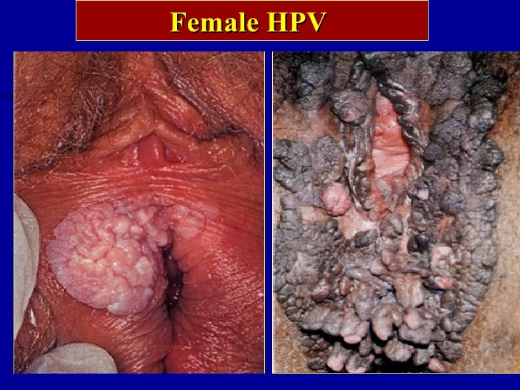Show pictures of sexually transmitted infections pictures