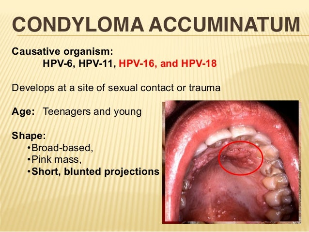 Sexually transmitted diseases hpv pictures
