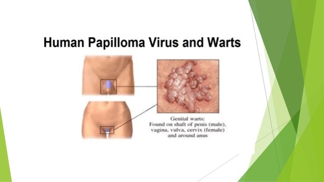 Hiv/aids sexually transmitted infections men