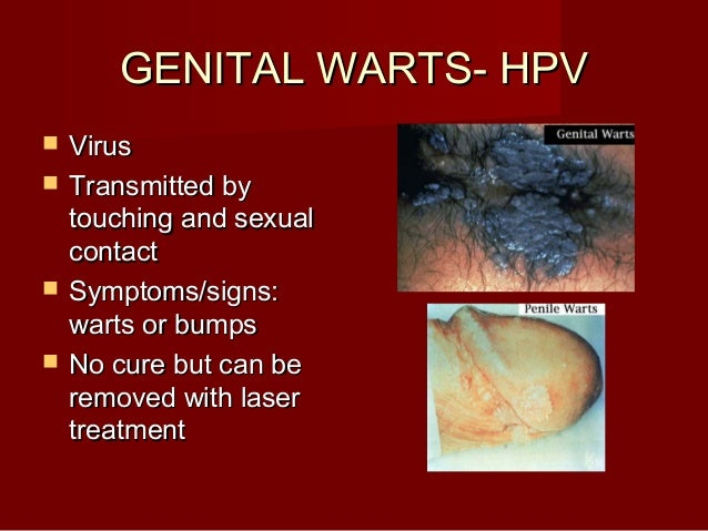 Is Hpv Always Sexually Transmitted