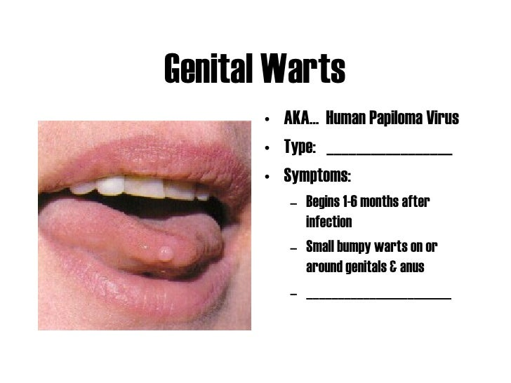 Sexual transmitted disease in mouth