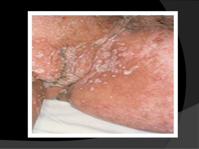 Sign of sexually transmitted disease