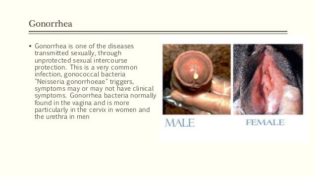 Types of sexually transmitted diseases syphilis