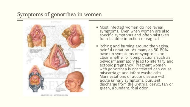 Sexually transmitted diseases (std) - Gonorrhea, Syphilis ...