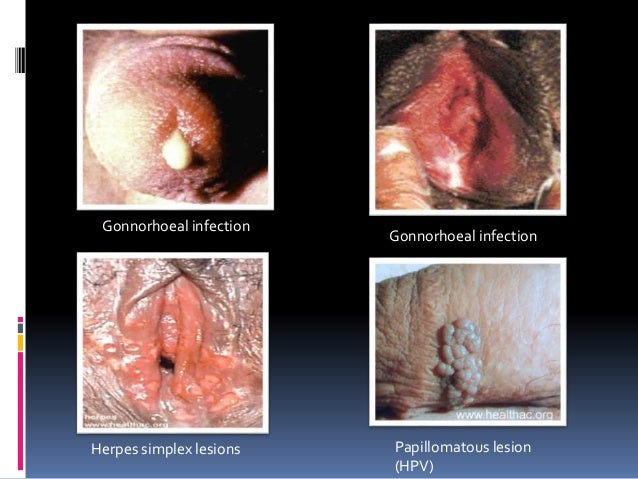 Sexually transmitted infection