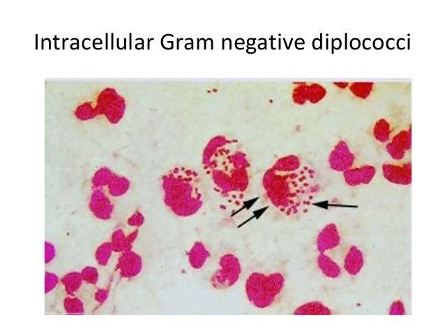 Gardnerella Vaginalis Sexually Transmitted