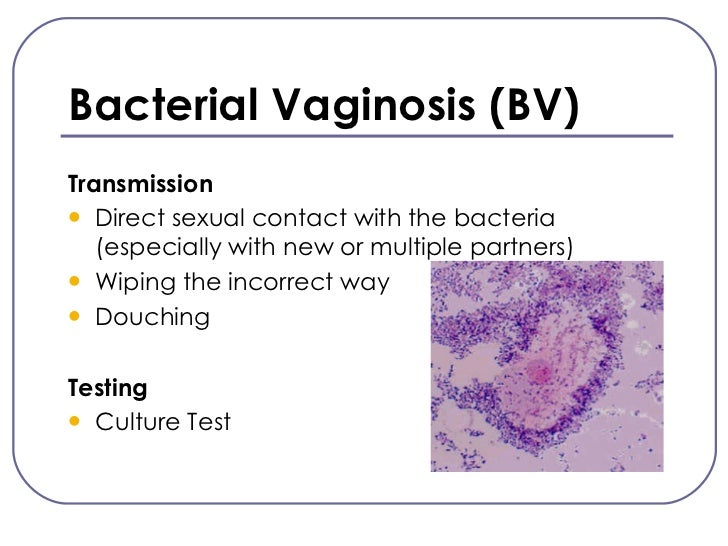 Sexually transmitted bacterial vaginosis