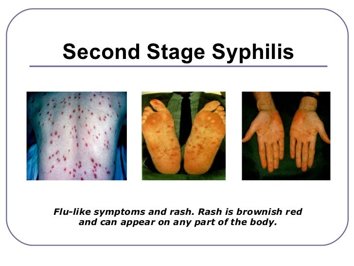 Sexually transmitted diseases pictures presentations