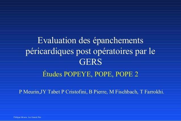 Evaluation des épanchements  péricardiques post opératoires par le  GERS  Études POPEYE, POPE, POPE 2  P Meurin,JY Tabet P...