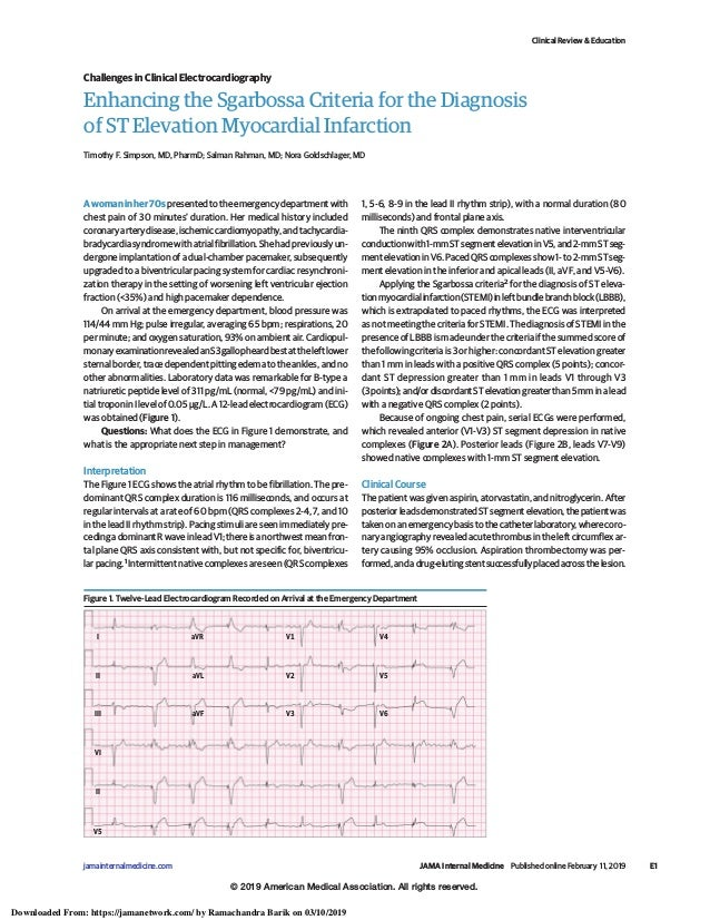 Enhancing the Sgarbossa Criteria for the Diagnosis of ST Elevation Myocardial Infarction Timothy F. Simpson, MD, PharmD; S...