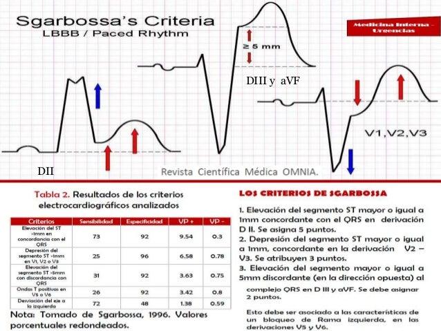 Sgarbossa criterios diagnosticos y ekg Guia rapida