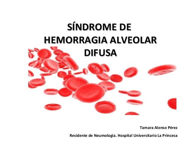 SÍNDROME DE HEMORRAGIA ALVEOLAR DIFUSA  Tamara Alonso Pérez Residente de Neumología. Hospital Universitario La Princesa