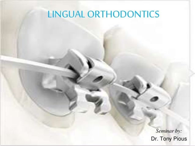 Seminar by: Dr. Tony Pious LINGUAL ORTHODONTICS