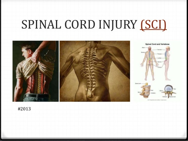 SPINAL CORD INJURY (SCI) #2013