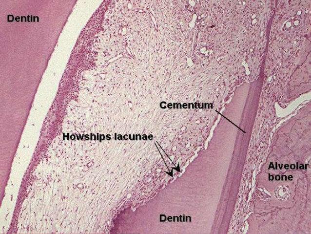 Shedding of deciduous teeth
