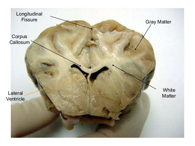 Sheep brain gross anatomy – Sheep Brain Dissection Worksheet