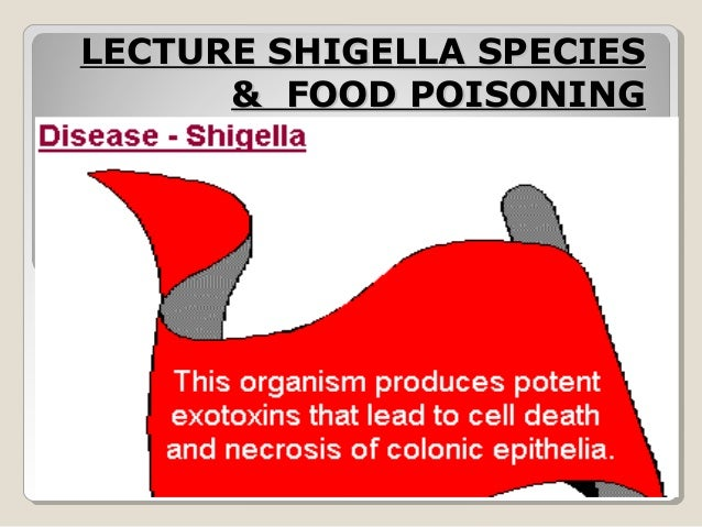 LECTURE SHIGELLA SPECIESLECTURE SHIGELLA SPECIES & FOOD POISONING& FOOD POISONING