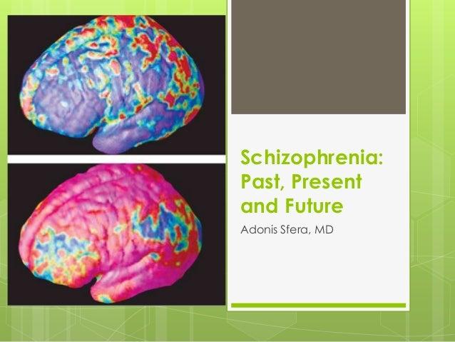 Schizophrenia:Past, Presentand FutureAdonis Sfera, MD
