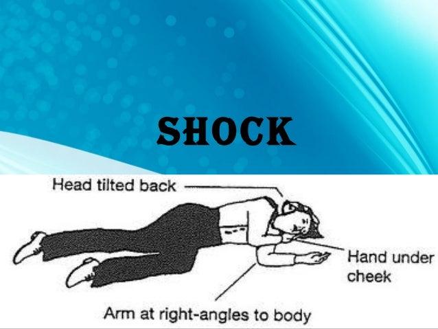 Shock and hemorrhage Slide 2
