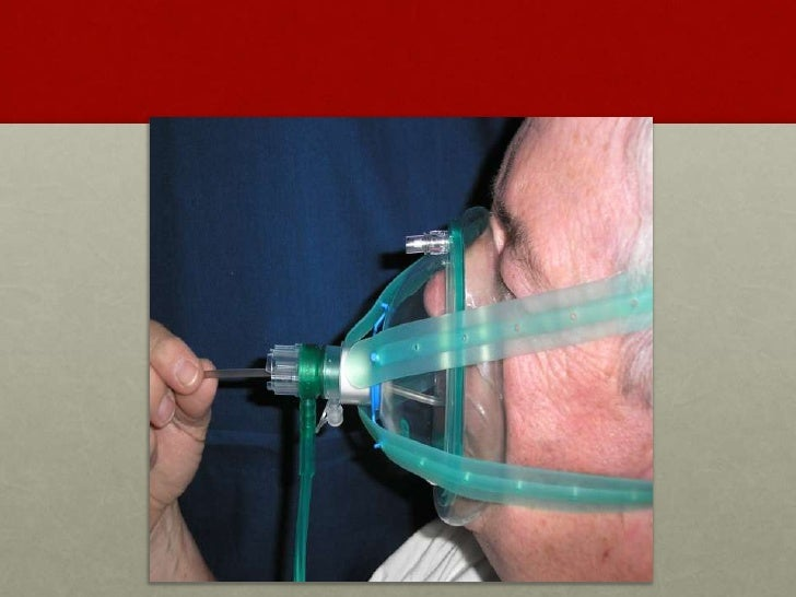 Cpap And Ems