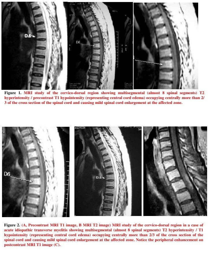 case study myelitis Acute transverse myelitis in systemic lupus  the aim of the present study is to report a case  acute transverse myelitis in systemic lupus erythematosus:.
