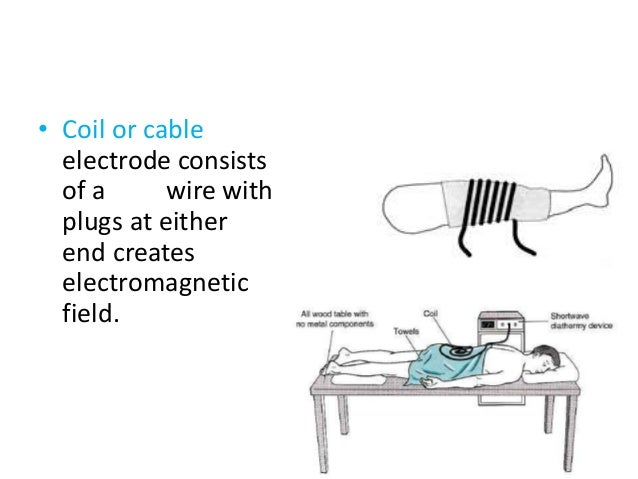 • Coil or cable electrode consists of a wire with plugs at either end creates electromagnetic field.