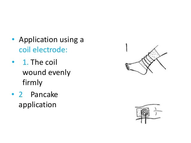• Application using a coil electrode: • 1. The coil wound evenly firmly • 2 Pancake application