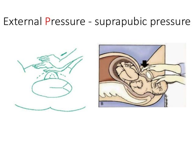 Third-linemaneuvers * The baby most likely in hypoxic-acidotic state…  Cleidotomy  Zavanelli maneuver (mostly for bilate...