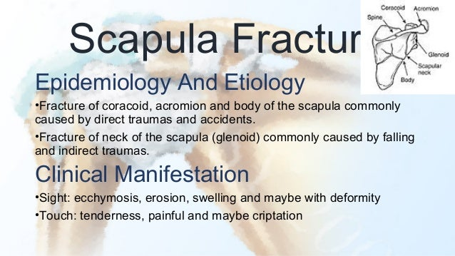 Image result for scapula fracture