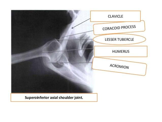 Shoulder Girdle Presentation