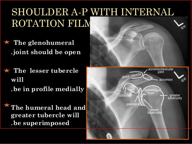 Shoulder joint xray & usg by Dr Soumitra Halder