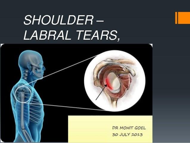 Shoulder labral tears MRI