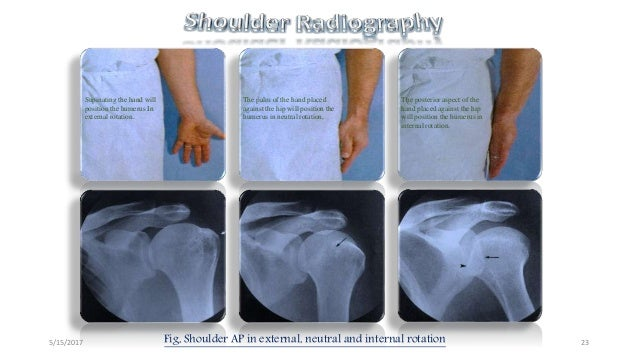 Shoulder radiography avinesh shrestha
