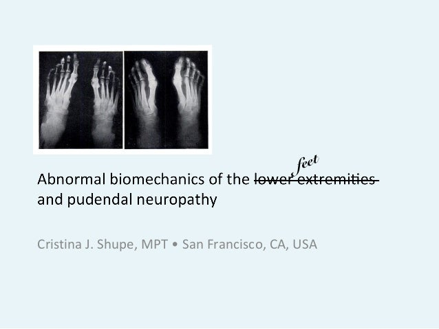 lower extremity biomechanics Background: the purpose of this study was to examine the effect of a cognitive  task on jump-landing biomechanics and performance methods: 26 recreational.