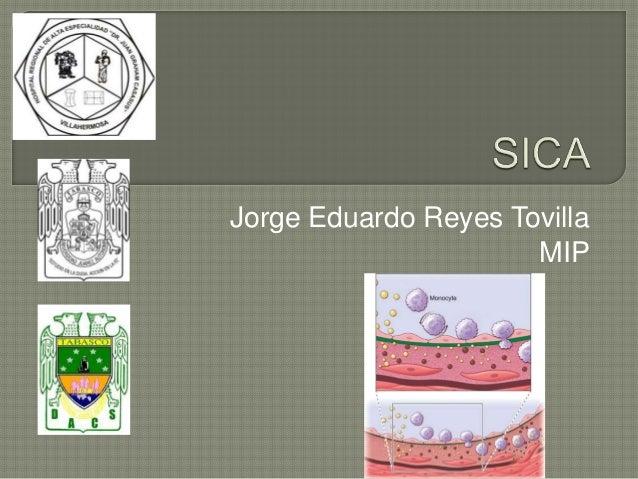 Jorge Eduardo Reyes Tovilla MIP
