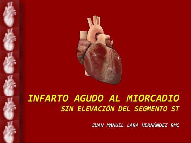 INFARTO AGUDO AL MIORCADIO SIN ELEVACIÓN DEL SEGMENTO ST JUAN MANUEL LARA HERNÁNDEZ RMC