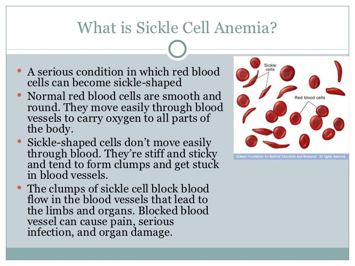 Sickle cell anemia Slide 2