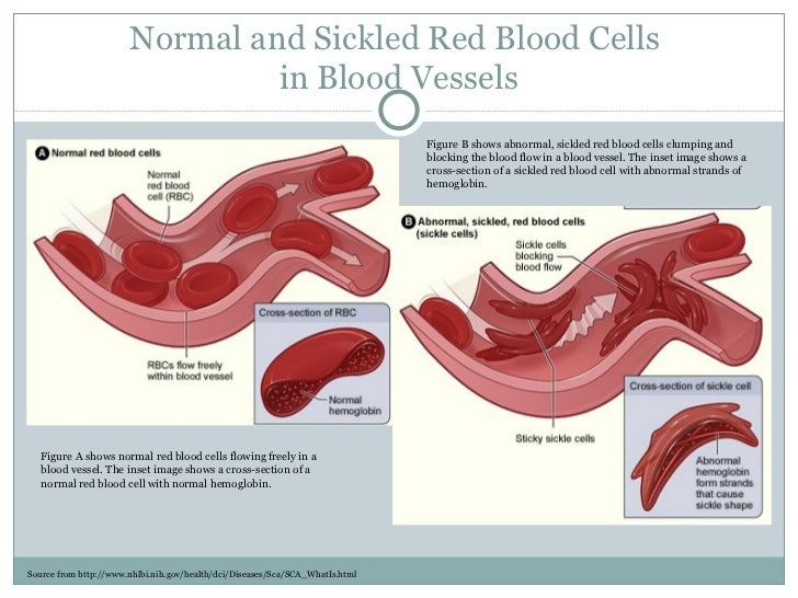 Sickle cell anemia Slide 3