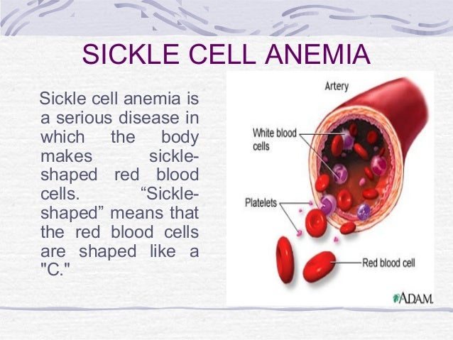 sickel cell anemia