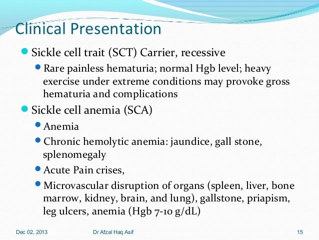 Sickle cell disease.Therapeutics