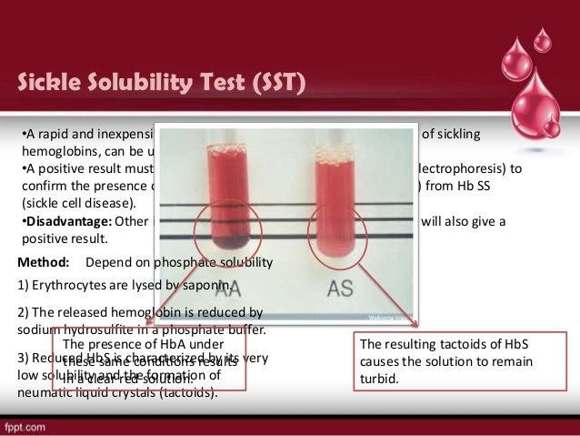 SICKLING TEST PROCEDURE EPUB