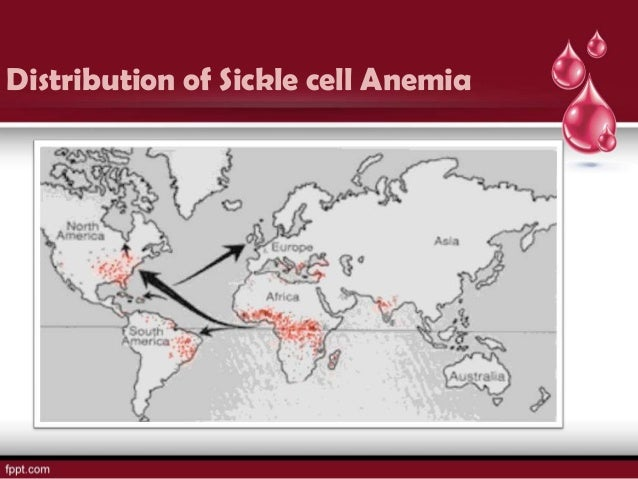 the medical description of sickle cell anemia Sickle cell anemia,  in the english description:  multiple myeloma + sickle cell disease + cialis - medical sickle cell anemia - medical.