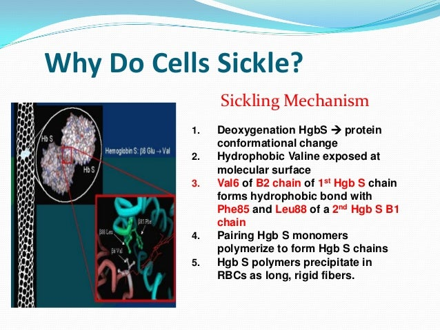 Sickle Cell Anemia Facts For Kids