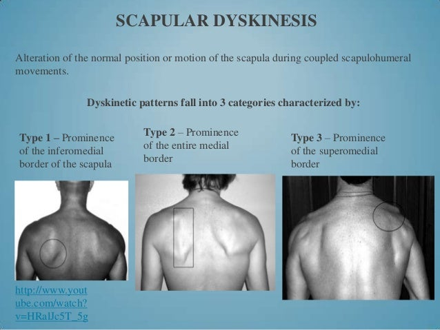 Clinical Assessment Of Scapula Proactive Physiotherapy