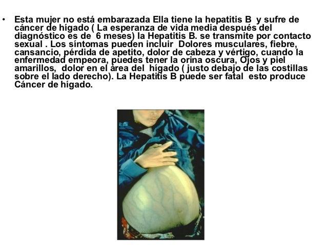 • Esta mujer no está embarazada Ella tiene la hepatitis B y sufre de  cáncer de hígado ( La esperanza de vida media despué...